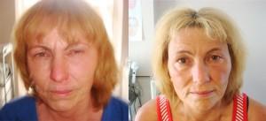Ansiktszonterapi före och efter